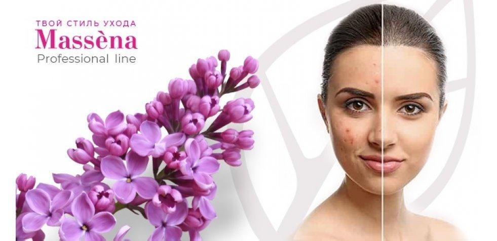 Линия anti-acne - новинка 2020 от Massena